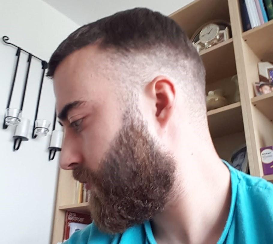 Vorteile der Haartransplantation an Bart und Kopf