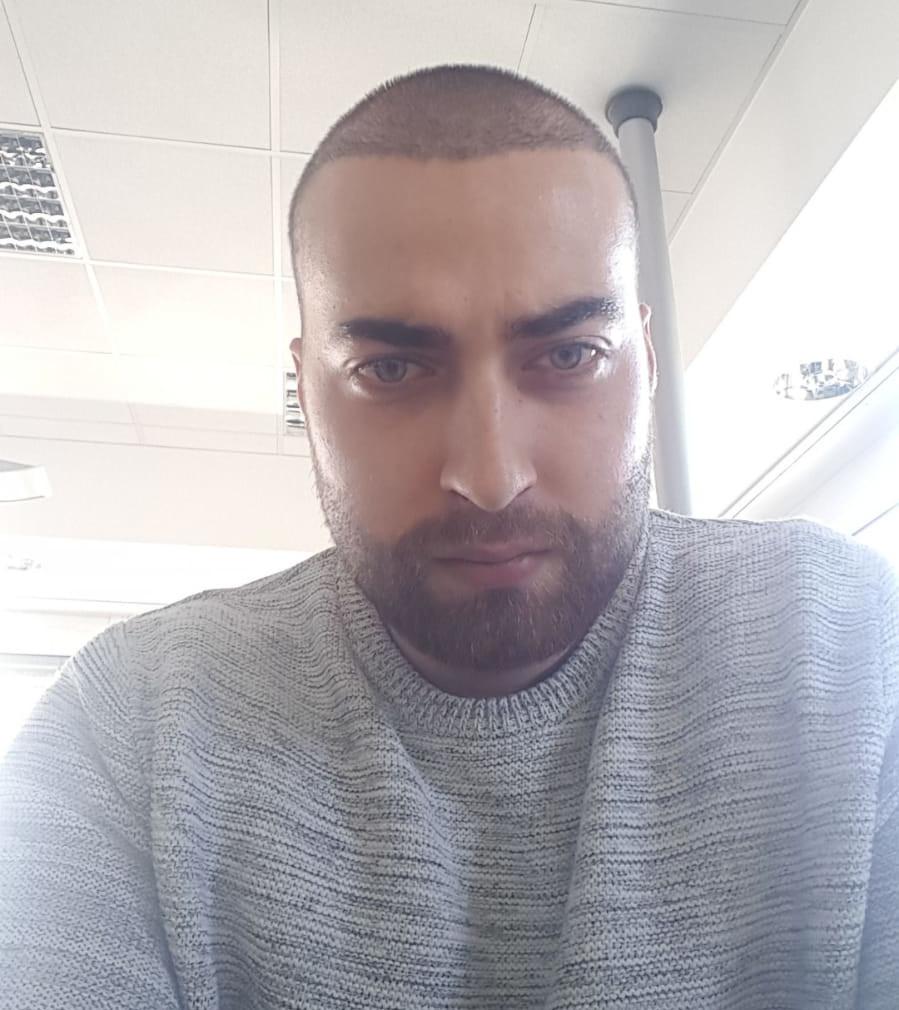 Haartransplantation Erfahrung von Andre