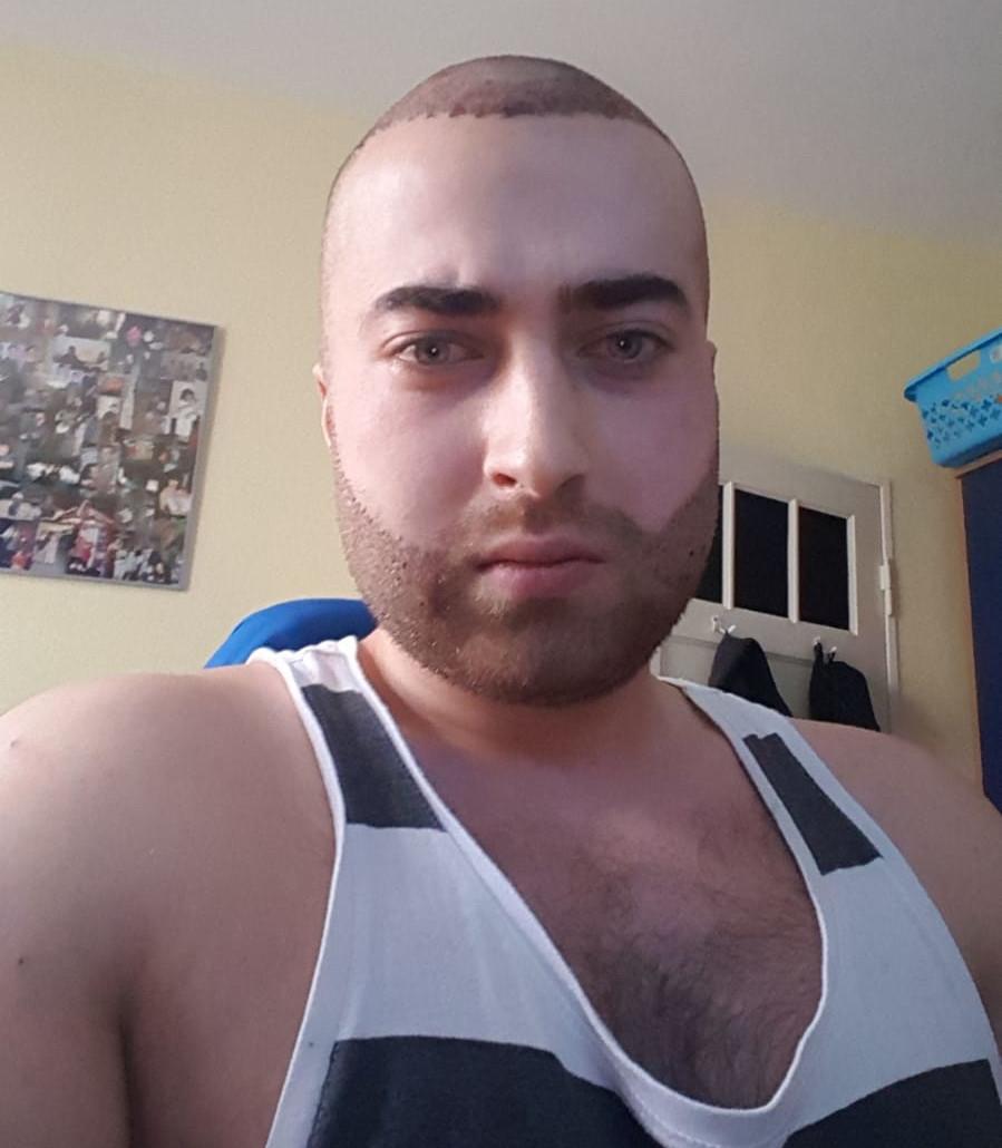 Bart und Haartransplantation