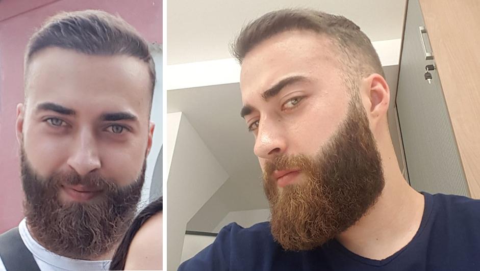 Barthaartransplantation - Andre mit Vollem Bart und Haar